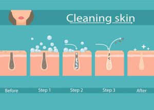 How to Clean Clogged Pores Naturally?