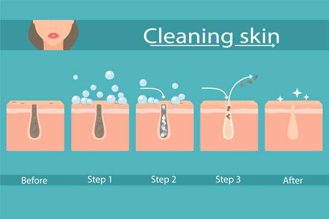 How to Clean Clogged Pores Naturally
